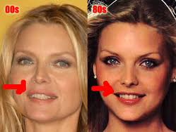 Michelle Pfeiffer Plastic Surgery Before and After Fillers