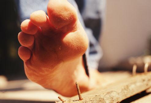 Прокол ноги что делать