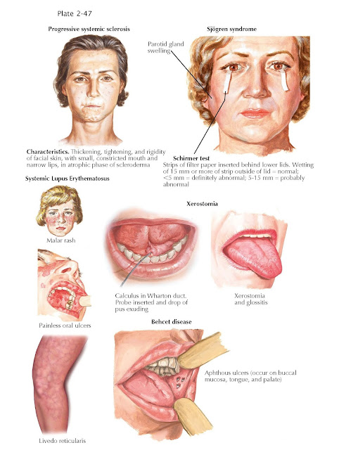 Oral Manifestations of Rheumatic Diseases