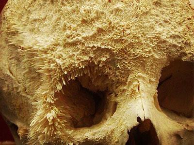cara mencegah kanker tulang