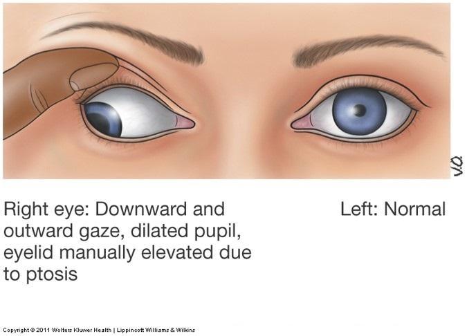 Eye Emergencies diagnosis aid