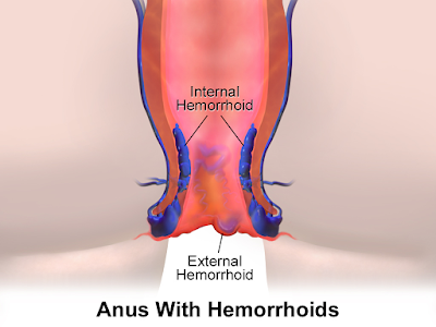 Symptoms Of Hemorrhoids And Possible Causes Of Piles