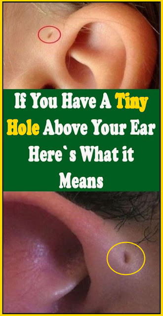 If You Have A Tiny Hole Above Your Ear, Here's What It Means