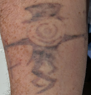 Tattoo One Week After Picosure Laser Removal