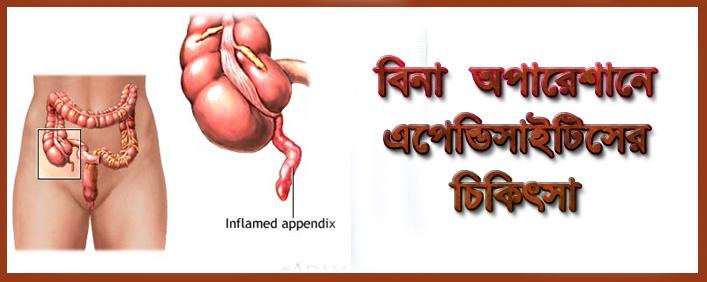 Appendisitis.JPG