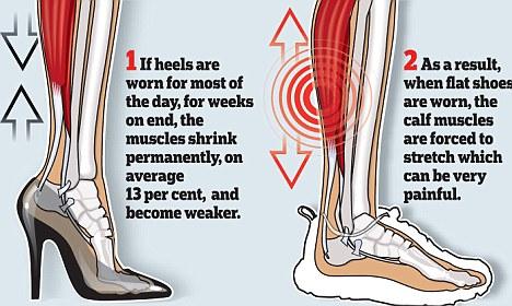 Suka Pakai Sepatu Hak Tinggi? Waspadai Keluhan Keluhan Penyakit ini!