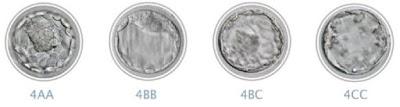 グレード別の胚盤胞の外観