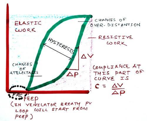 Normal PV loop in mechanical ventilation