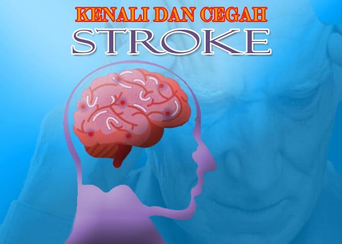 Kenali dan Cegah Penyakit Stroke