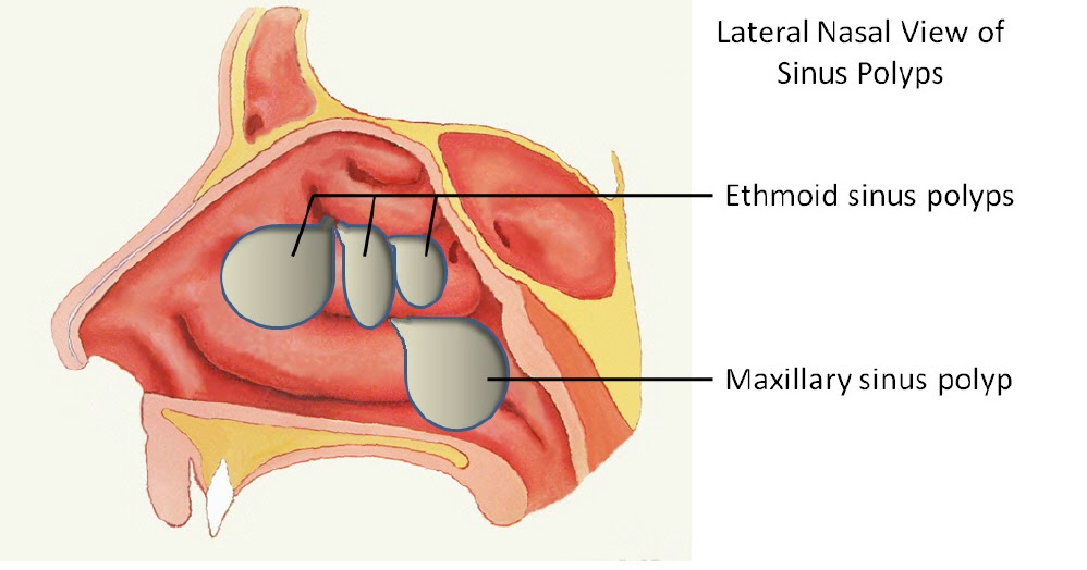 Nasal Polyp Pictures