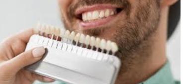 العدسات اللاصقة للأسنان
