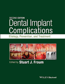 Dental Implant Complications 2nd Edition