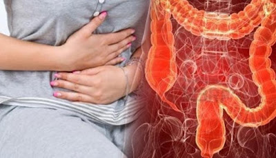Penyebab, Gejala, dan Tips Kurangi Risiko Kanker Kolorektal