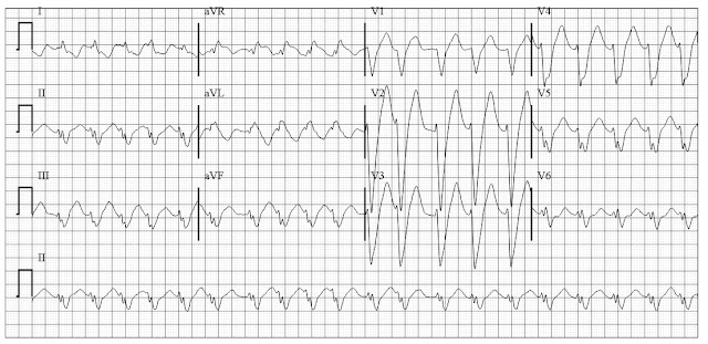 Atrial Fibrillation with rapid ventricular response and LBBB