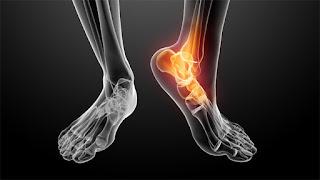 arthritis  مفصل رجل ملتهب