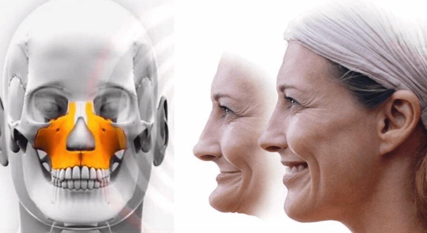 maxille vieillissement visage