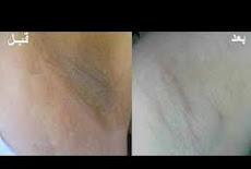 أفضل وصفة لتبييض مناطق الإبط وتفتيحها  The best recipe for whitening underarm areas and lightened