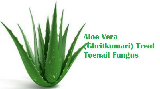 Aloe Vera (Ghritkumari) Treat Toenail Fungus