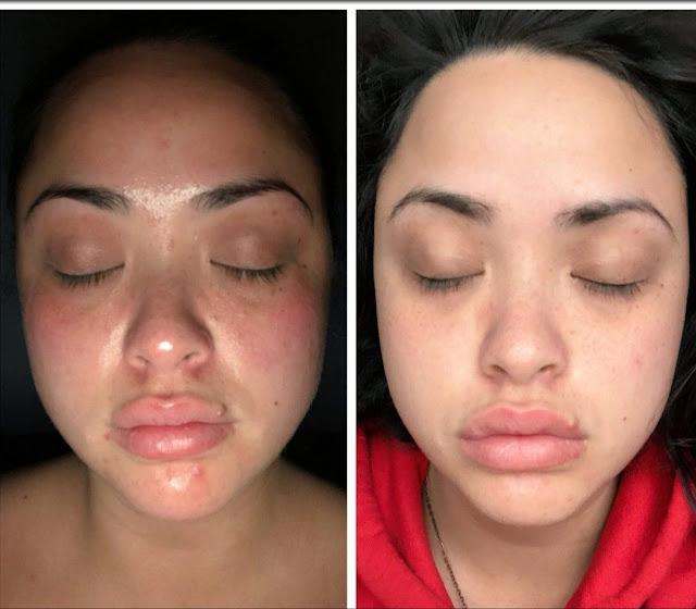 Eliminer les dommages causés par le stress sur la peau en suivant ces recommandations