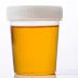 Kenali dan Pahami arti Warna pada air Urin/Kencing bagi Kesehatan