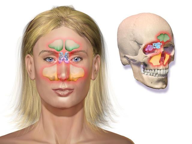 4 traitements maison pour soigner les polypes nasaux naturellement
