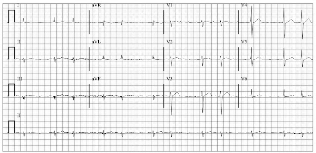 Atrial Flutter with multilevel Block