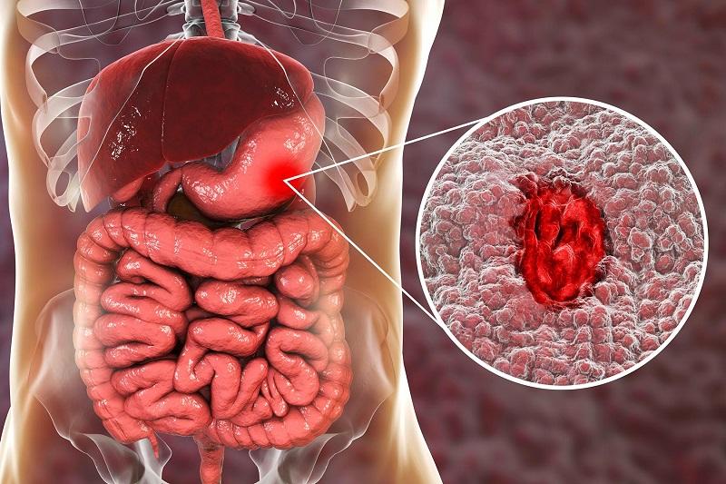 Dieta Para Úlcera Estomacal: Alimentos Para Comer e Evitar