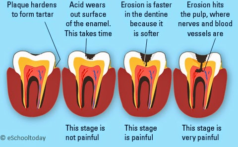 does filling a cavity hurt