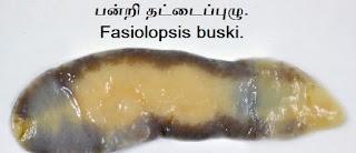 Fasiolopsis-buski