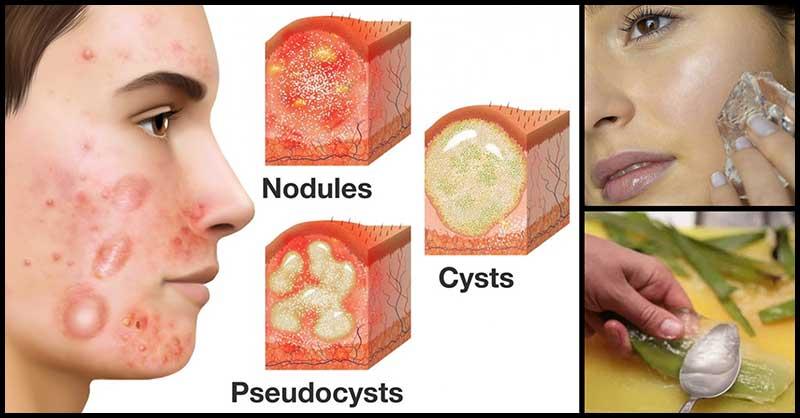 Effective Home Remedies Against Cystic Acne Dr Farrah Md