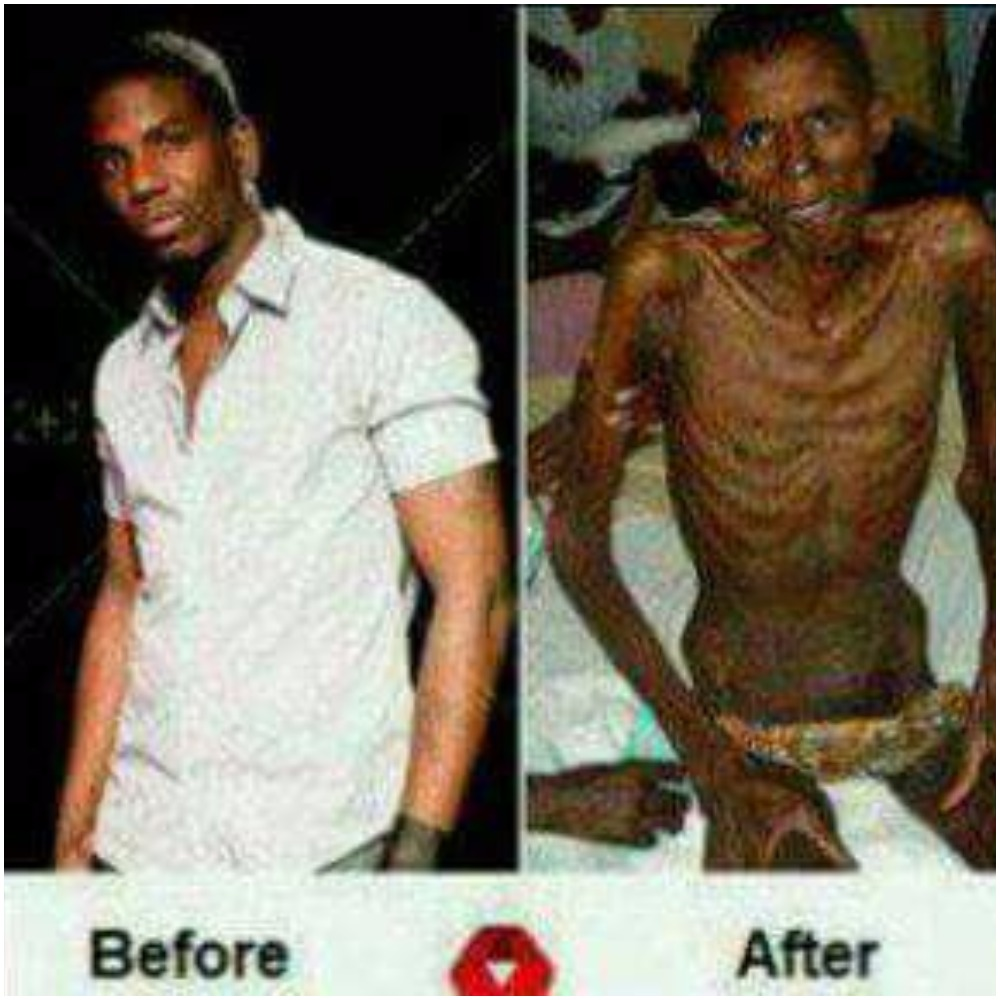 CONFESSION TO ALL UNIVERSITY STUDENTS,SEE WHAT HIV DID TO ...