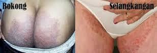 Obat Menghilangkan Gatal Pada Selangkangan Dan Pantat Atau Bokong