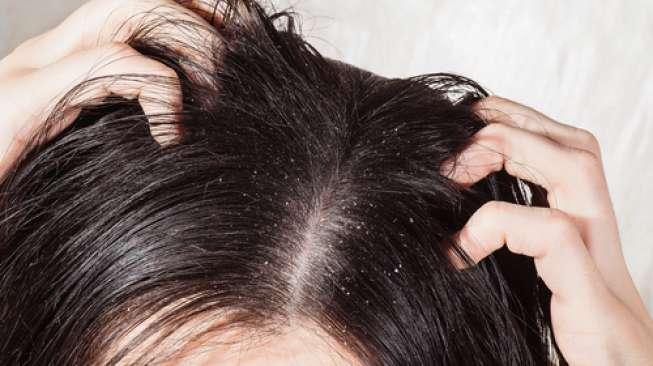 Tips 11 Cara Menghilangkan Ketombe Secara Alami Cepat Dan Permanen Cara Merawat Kulit Wajah