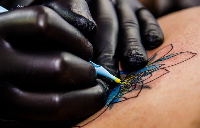 Tattoo Removal A Profitable Business
