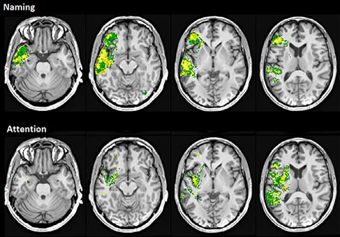 図:損傷位置と認知機能