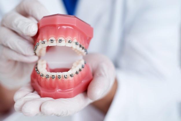 Diş Teli Taktırmadan Önce Bunları Mutlaka Uygulayın