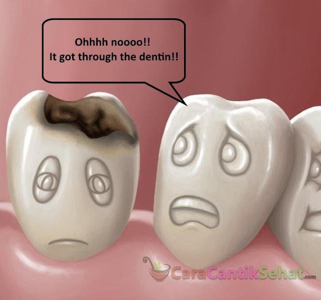 Cara Mengobati Sakit Gigi Berlubang Paling Ampuh