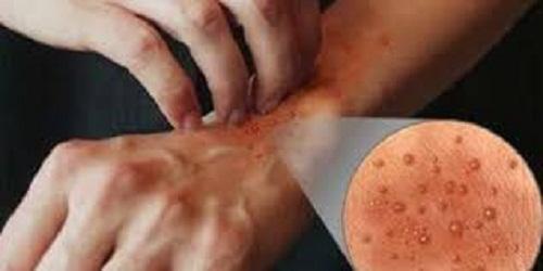 alergi getah bawang putih