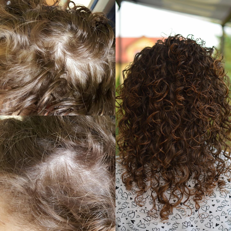 wypadanie włosów po visanne