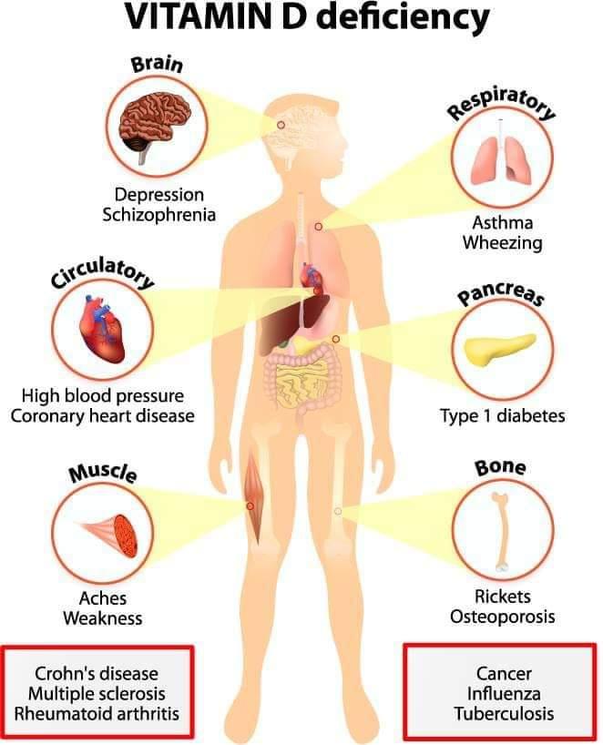 gejala kekurangan vitamin D-cara mengatasi kekurangan vitamin d,makanan vitamin d,kekurangan vitamin d boleh menyebabkan,defisiensi vitamin d pdf,insufisiensi vitamin d pada ibu