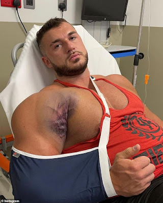 Ryan Crowley terbaring setelah ototnya robek