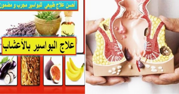 توسط الحالة نزاع البواسير 8