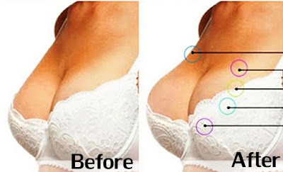 Before dan after pemakaian vienna breast cream