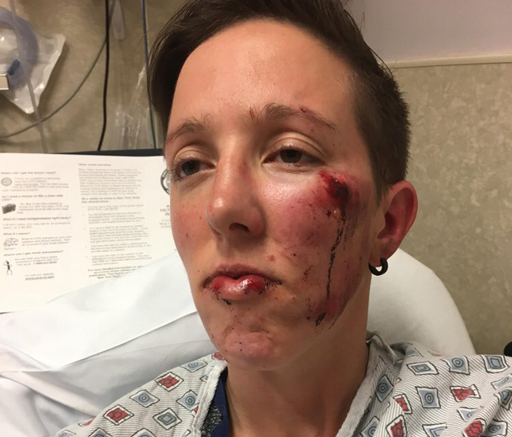 A lesbian couple on Long Island were attacked earlier this month in Patchogue in an assault that police say they are investigating as a hate crime.