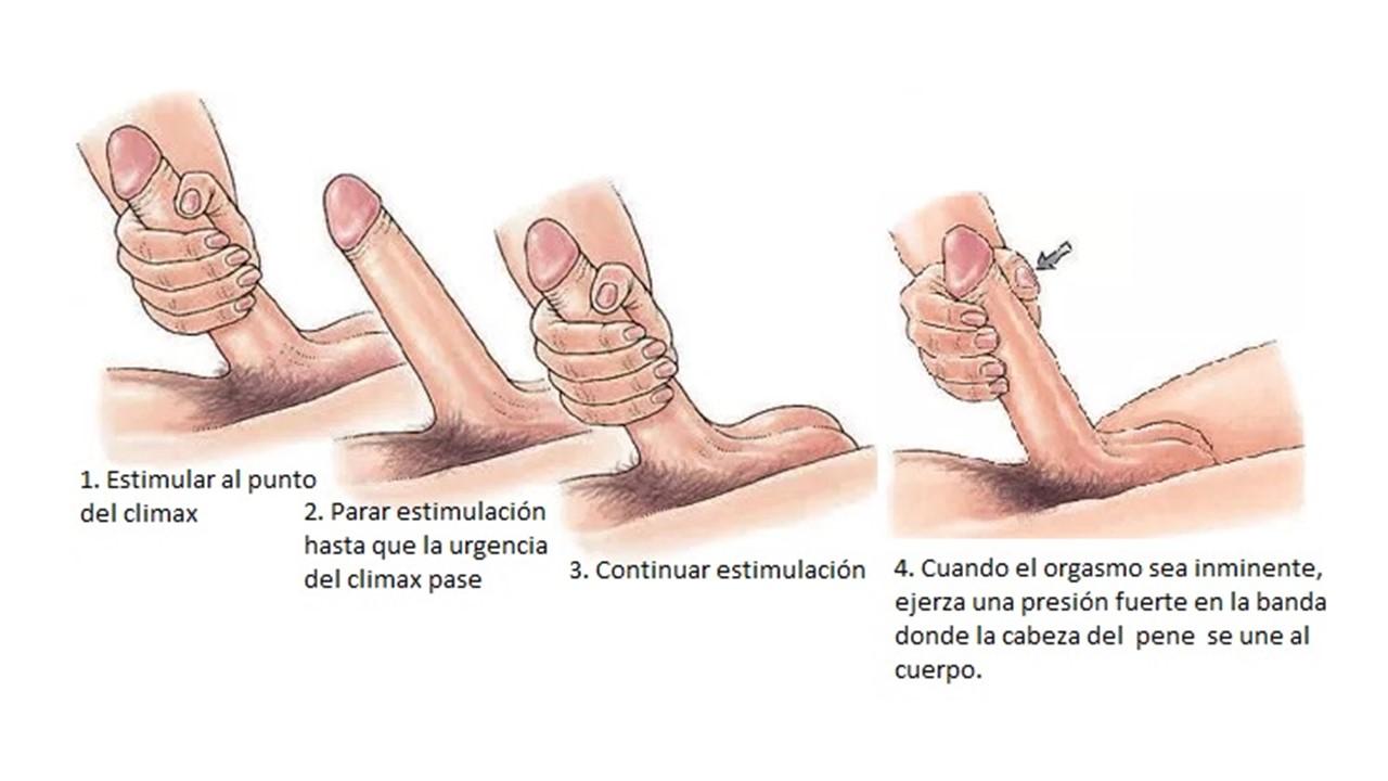 erecciones mejoradas después de una cirugía radical de próstata