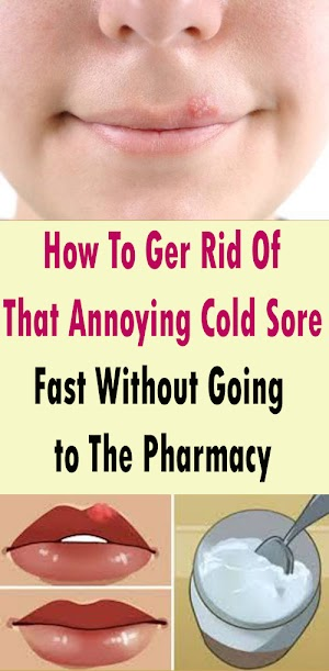 How To Ger Rid Of That Annoying Cold Sore Fast Without Going To The Pharmacy