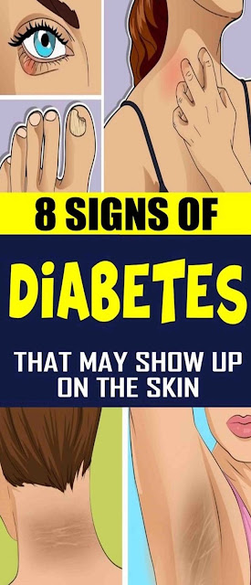8 Signs Of Diabetes That May Show Up On The Skin