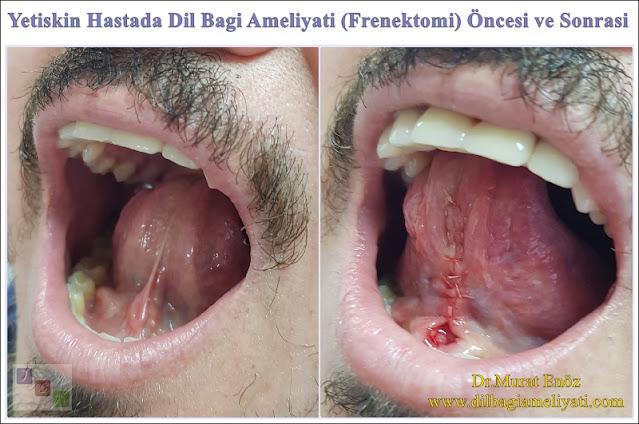 Erişkin Hastada Dil Bağı Operasyonu Öncesi ve Sonrası