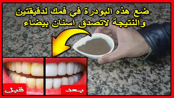 امسحي بها اسنانك لدقيقتين لتبييض الاسنان وازالة طبقات الجير اقسم بالله مجربة وقولوا وداعا لطبيب الاسنان