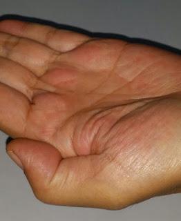 Sapuan alkohol pada tangan